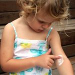 Tips and Tricks to Treat Eczema At Home